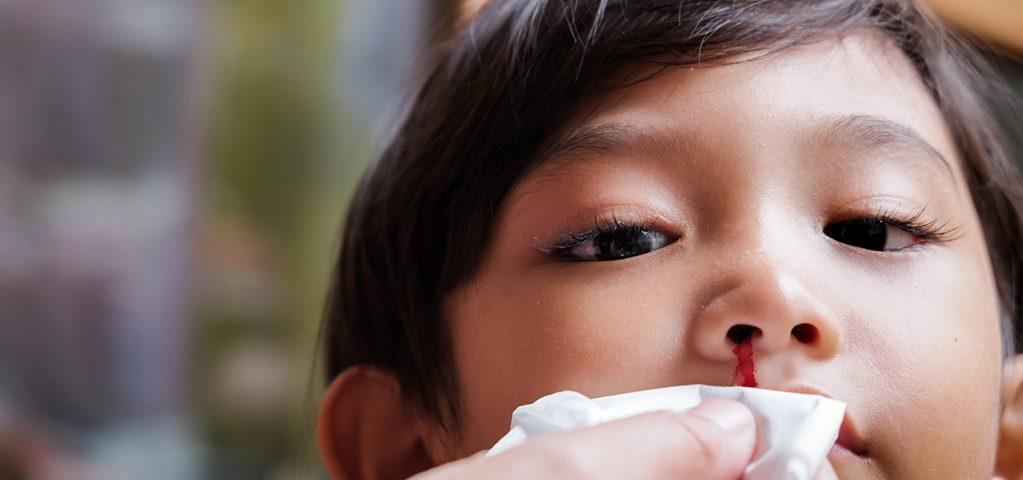 Krwawienie z nosa u dziecka